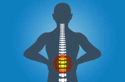 Illustration of Chronic Back Pain Accompanied By Swelling In The Back?