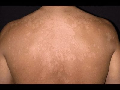 Illustration of Tinea Versicolor Widened After Using The Ointment?