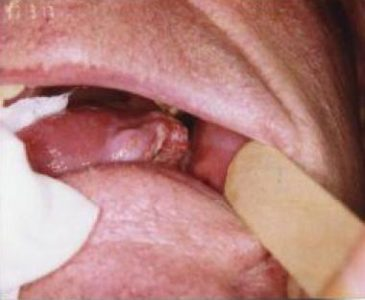 Illustration of A Lump On The Tongue That Cannot Be Pulled Out?