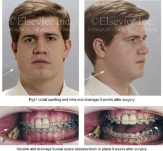 Illustration of Swelling Accompanied By Pain In The Former Jaw Fracture Surgery?