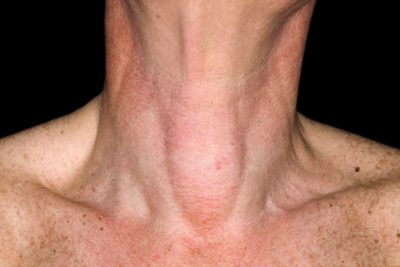 Illustration of The Jaw Appears Asymmetrical With A Lump In The Neck?