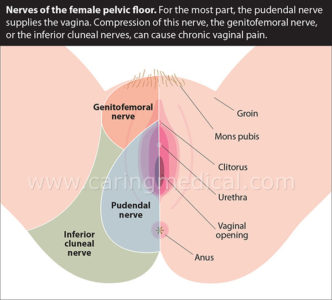 Illustration of Pain Around The Thighs, Buttocks And Vagina On The Left?