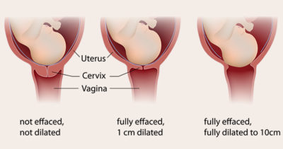 Illustration of The Possibility Of A Normal Delivery When A Pregnant Woman Is HBsAg Positive?