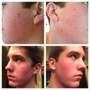 Illustration of Acne Inflamed After Doing Blue Light Therapy?
