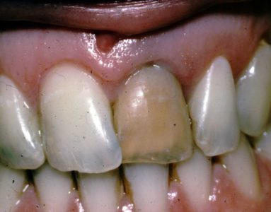 Illustration of Solution To Overcome Discoloration Of Teeth After Previously Dislodged?