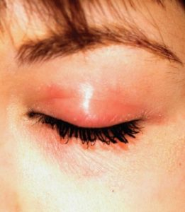 Illustration of Inflammation Such As Burns In The Area Around The Eyes?