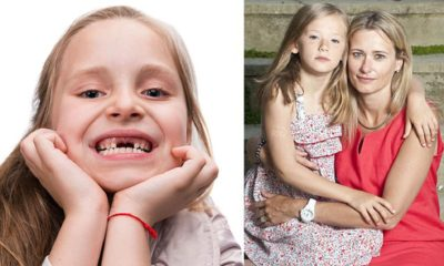 Illustration of The Cause Of Baby Teeth Has Not Been Dated At The Age Of 16 Years?
