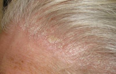 Illustration of The Scalp Is Scaly And Appears Like Pimples And Is Bleeding?