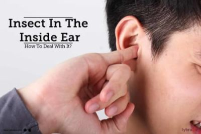 Illustration of Hearing Loss After Insects Enter The Ear?