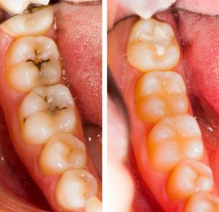Illustration of Treatment For Cavities With Dental Fillings?