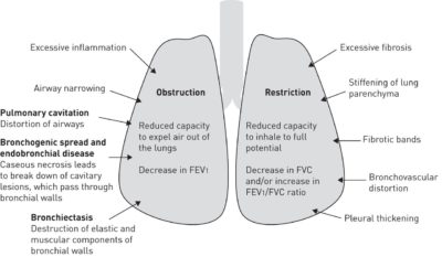 Illustration of Continuous Shortness Of Breath With A History Of Tuberculosis?