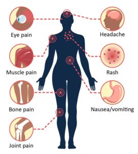 Illustration of Dengue Pain Along With A Left Abdominal Pain In The Back?