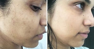 Illustration of How To Get Rid Of Black Spots On The Face?