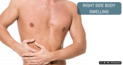 Illustration of The Cause Of The Left Side Of The Body Is Often Sick?