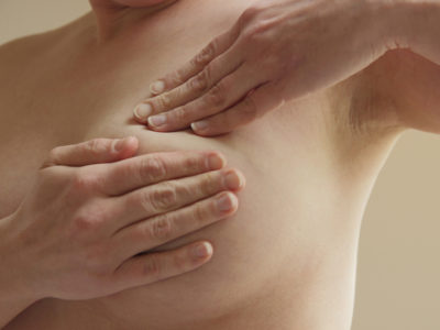 Illustration of Causes Of Breast Pain And Bruising In The Breast?