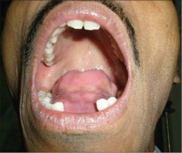 Illustration of The Lower Tongue Swells After Pulling Teeth?