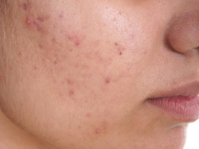 Illustration of Roaccutane Medication For Overcoming Acne?