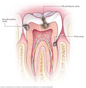 Illustration of The Cause Of Tooth Cavities And Aching?