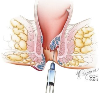 Illustration of Solution To Give Birth To Patients With Third-degree Hemorrhoids?