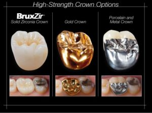 Illustration of Choice Of Crown Material?