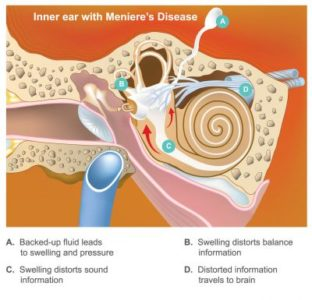 Illustration of Swelling In The Middle Ear Accompanied By Buzzing?