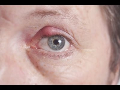 Illustration of How To Deal With Boils In The Pupils Of The Eyes?