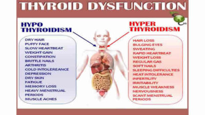 Illustration of The Possibility Of Thyroid Disease Being Completely Cured?
