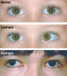 Illustration of The Possibility Of Crossed Eyes Can Be Completely Cured?