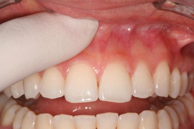 Illustration of Overcoming The Polyps In The Gums On Cavities That Often Bleed?