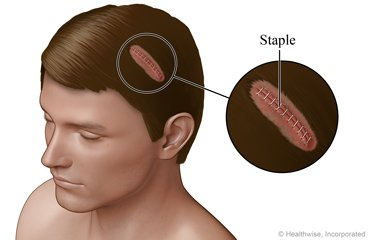 Illustration of Treatment For Stitched Head Wounds?
