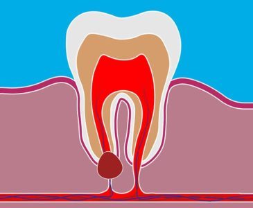 Illustration of Causes And Overcoming Lumps In The Gums?