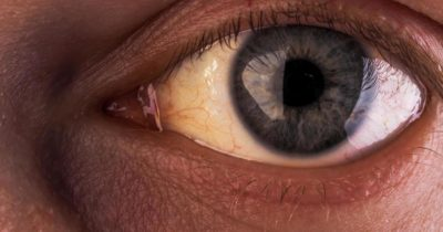 Illustration of The Cause Of The Eyes Appear Yellow Accompanied By The Appearance Of Painful Red Spots?