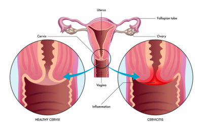 Illustration of Feels Itchy On The Inside Of The Vagina Accompanied By White Fluid Out Like Coconut Pulp?