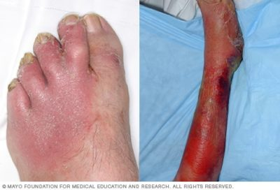 Illustration of Causes Of Cellulitis?