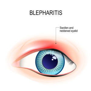 Illustration of Swollen Corner Of The Eye And Like Pimples There Is White?