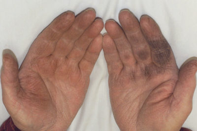 Illustration of Black Patches On The Skin Of The Palm?