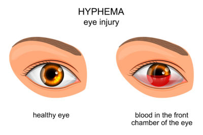 Illustration of The Right Eye Becomes Farsighted After Eye Bleeding?