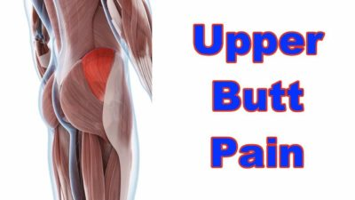Illustration of Pain In The Upper Part Of The Buttocks?