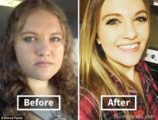 Will My Cheeks Thin When I Lose Weight?