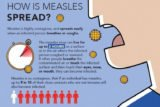 Is Measles Contagious Or Not?