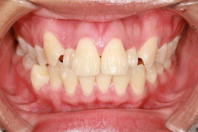 Illustration of How To Cope With Forward Teeth?