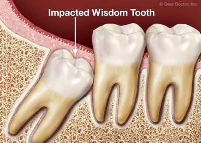 Illustration of How To Deal With Wisdom Teeth That Are Slanted To The Cheek?