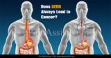 Can GERD Cause Cancer?