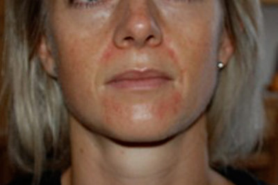 Illustration of Redness Of The Skin That Never Heals?