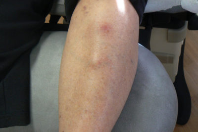 Illustration of Biopsy Examination For Lumps In The Shin?
