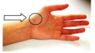 Illustration of Lumps In The Wrist Accompanied By Pain In The Thumb?