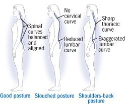 Illustration of Back Pain Accompanied By Changes In Posture?