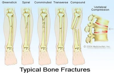 Illustration of How To Deal With Injuries To The Bone Due To Falling From The Motor?