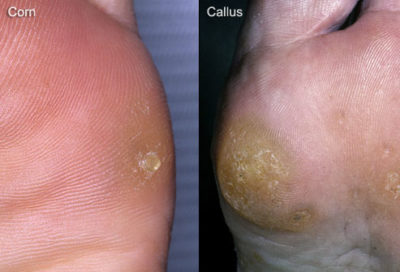 Illustration of Hard Bumps Appear On The Skin Of The Feet?
