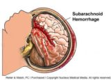 Causes Of Bleeding In The Brain?